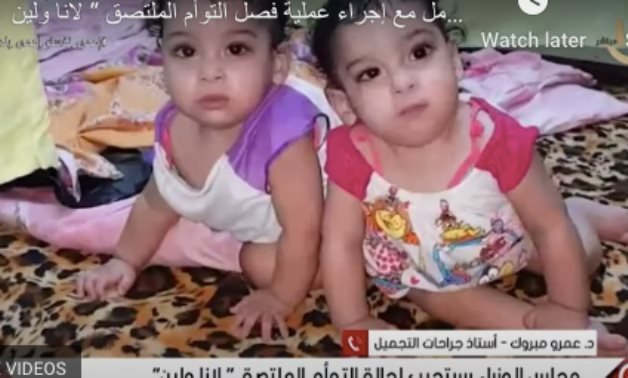 Conjoined twin Lana and Leen- a screenshot from a video
