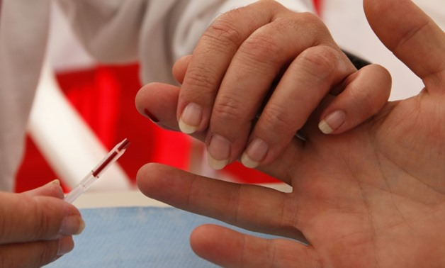 About 36.7 million people in the world were living with HIV in 2016, but fewer than 21 million people had access to antiretrovirals, according to UNAIDS