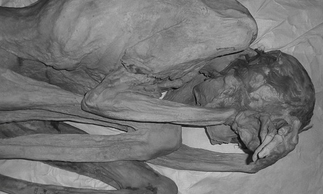 An infrared image of the female mummy known as 'Gebelein Woman' can be seen in this photograph issued by The British Museum in London, Brita