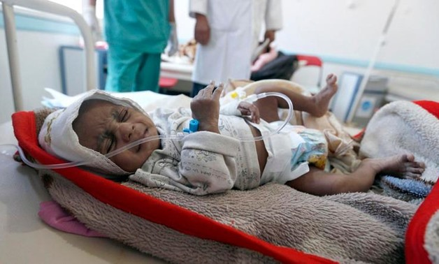 A Yemeni child suspected of being infected with cholera receives treatment at a hospital in Sanaa. (Reuters)