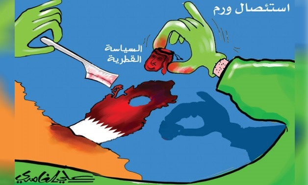 Caricaturist Ali al-Ghamdy drew Tamim Bin Hamad's head as a tumor being extracted from the Arab region's body – Courtesy of Al-Madina newspaper