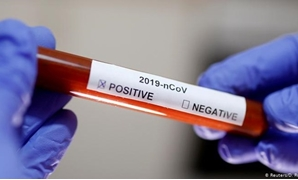 FILE - Coronavirus PCR - Reuters